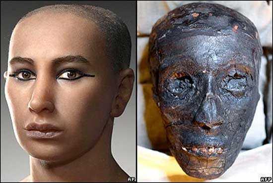 как умер Фараон Тутанхамон