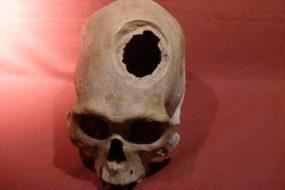 Хирурги далекой древности умели делать трепанацию черепа.